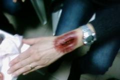 Simulazione ferite 2